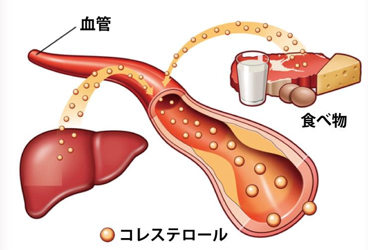 ウコンのコレステロールを減らす作用